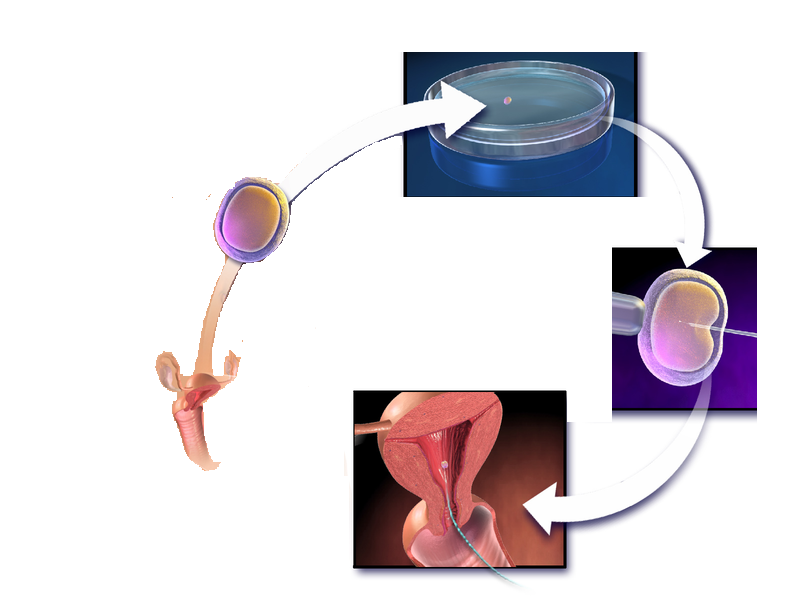 What is IVF? Info grapghic