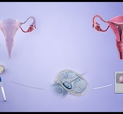 What is IVF? Image
